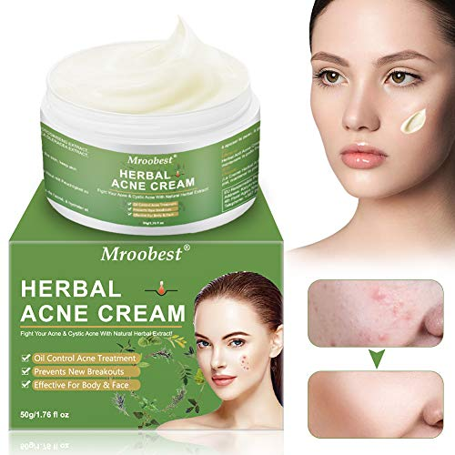 Akne Creme, Anti Pickel Creme, Anti Akne Creme, Herbal Anti Acne Cream, Balance Wasser und Öl, Hilft Gesicht Akne zu entfernen, Pickel Anti Akne Creme regeneriert die Haut - 50g/1.76 fl oz