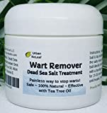 Painless Wart Removals - Best Reviews Guide
