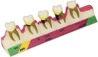 Anatomiemodel, Mondholte tandheelkundige laboratorium apparatuur tandarts orale hygiëne menselijke schedel skeleton anatom...