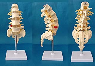 Medical Human spine Spine pathology demonstration model Anatomical Model Lumbar Vertebrae Sacrum & Coccyx, with Herniation Disc Sold by East dental
