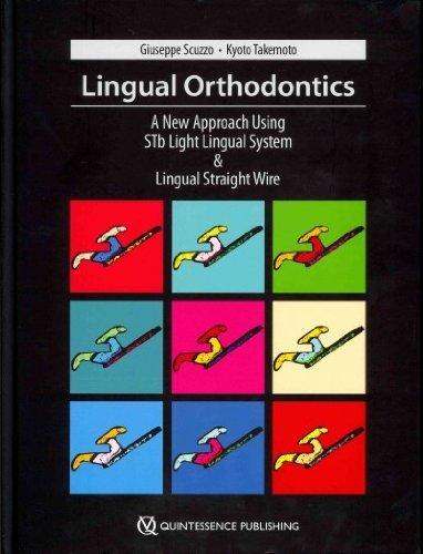 Lingual Orthodontics: A New Approach Using Stb Light Lingual System & Lingual Straight Wire