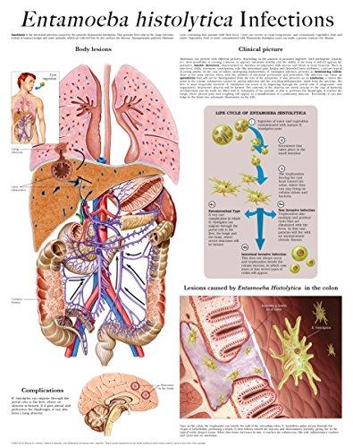 Entamoeba histolytica Infections e-chart: Full illustrated (English Edition)