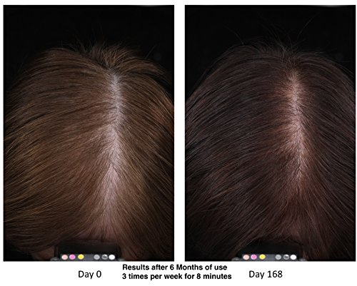 NutraStim Professional Hair Growth System