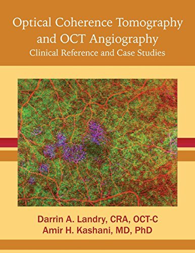 Optical Coherence Tomography and OCT Angiography