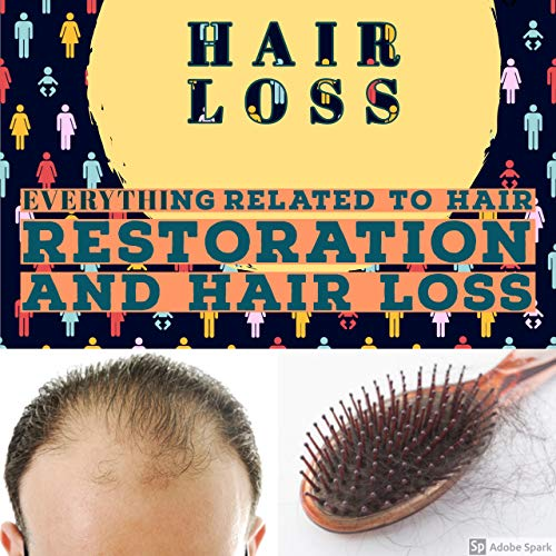 HAIR LOSS: Everything Related To Hair Restoration And Hair Loss (English Edition)