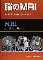 脳のMRI