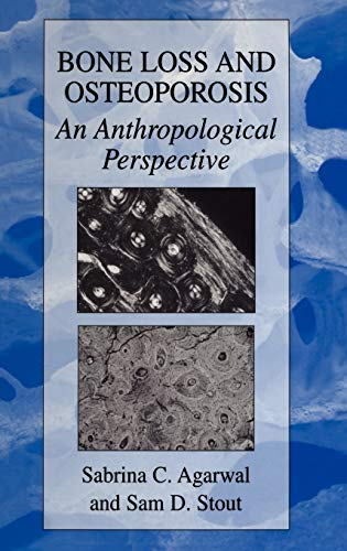 Bone Loss and Osteoporosis: An Anthropological Perspective