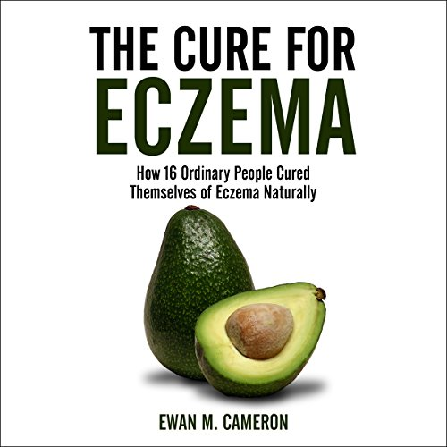 The Cure for Eczema audiobook cover art
