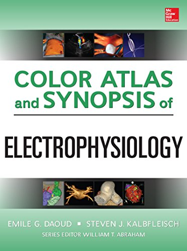 Color Atlas and Synopsis of Electrophysiology (English Edition)