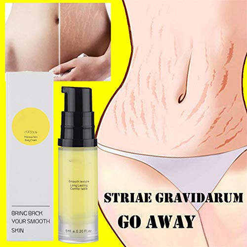 Crazy Ling Smoothing Cream, Stretch Marks Pregnancy,Pregnancy Scar Remover, Stretch Mark Repair Cream, Stretch Mark Remover Oil (1PCS)