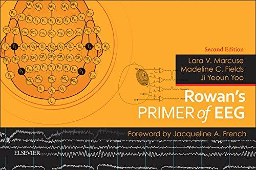 Rowan's Primer of EEG E-Book (English Edition)