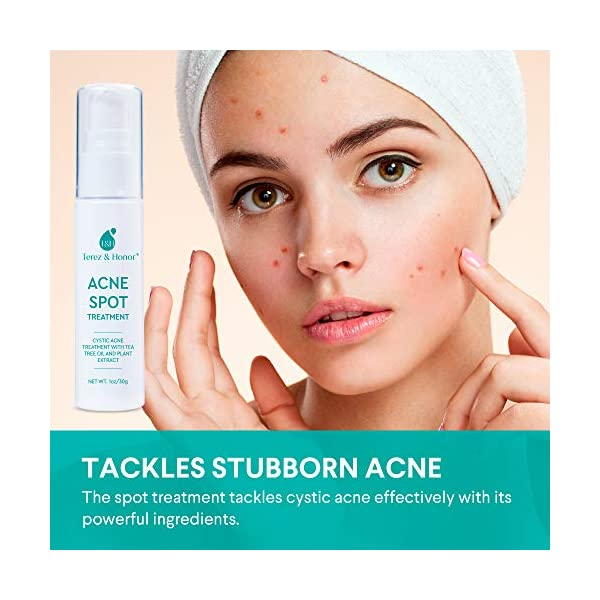 Acne treatment products Acne Spot Treatment for Acne Prone Skin – Treats Cystic Acne, Advanced Acne