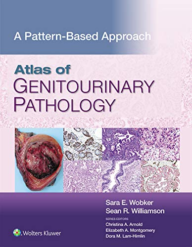 Atlas of Genitourinary Pathology: A Pattern Based Approach (English Edition)