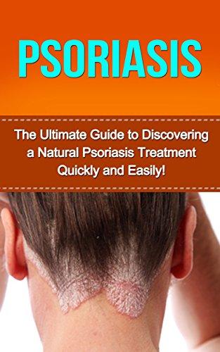 scalp psoriasis treatment canada