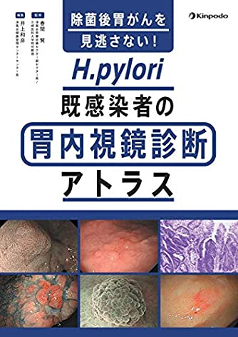 除菌後胃がんを見逃さない! H.pylori既感染者の胃内視鏡診断アトラス
