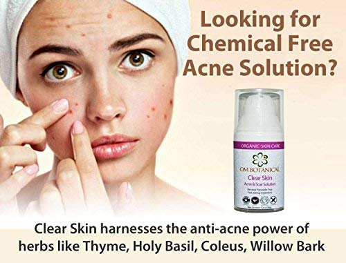 Natural Acne Treatment & Scar Cream | Benzoyl Peroxide Free Fast Zit Remedy for Cystic, Hormonal, Teen, Adult & Body Acne Pimples. Safe Organic Solution for Blemish Free Skin