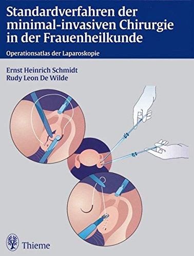 Standardverfahren der minimal-invasiven Chirurgie in der Frauenheilkunde: Operationsatlas der Laparoskopie