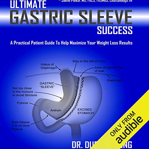 Ultimate Gastric Sleeve Success cover art