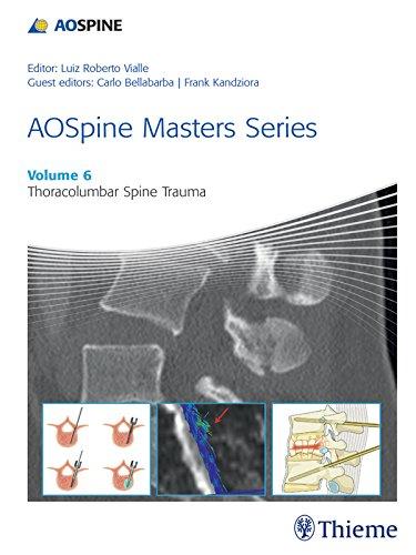AOSpine Masters Series, Volume 6: Thoracolumbar Spine Trauma (AOSpine Masters Series, 6) (English Edition)