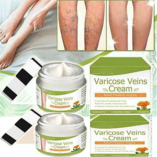 Crema para varices, crema para venas varicosas, crema para venas varicosas y calmante para piernas, tratamiento natural para venas varicosas, tratamiento para arañas vasculares (2 piezas)