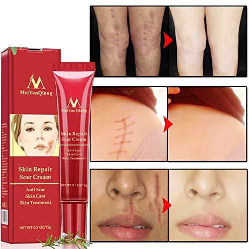 Symeas Réparation de la crème réparatrice anti-cicatrices Symeas Réparation des taches cicatricielles Améliore l'apparence des cicatrices