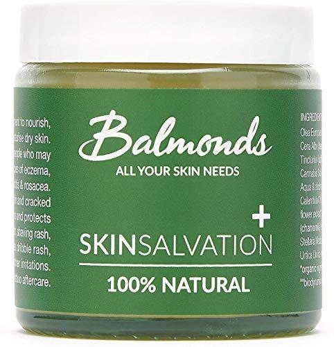 Ekzem Creme - Balmonds Skin Salvation 120ml -100% natürliche - Psoriasis Salbe für Babys, Kinder, Erwachsene die zu Ekzemen - Psoriasis und Neurodermatitis neigen, Heilende Creme für Kinder gegen Juckreiz