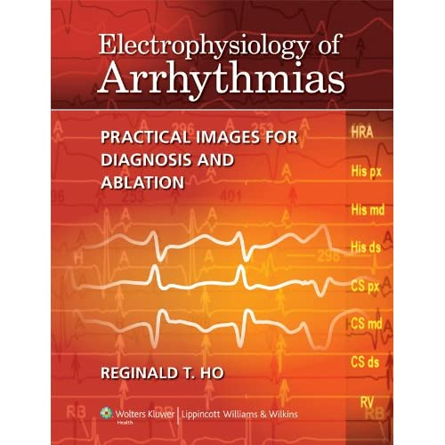 Electrophysiology of Arrhythmias: Practical Images for Diagnosis and Ablation
