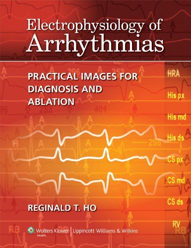 Emrebook electrophysiology of arrhythmias practical images for easy you simply klick electrophysiology of arrhythmias practical images for diagnosis and ablation book download link on this page and you will be fandeluxe Gallery