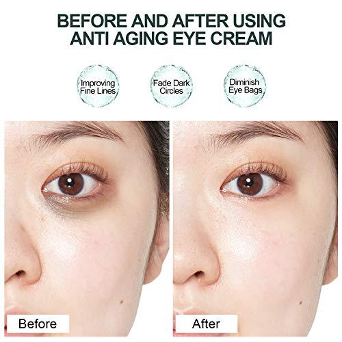 51tzINUGqiL - Under Eye Cream - Eye Repair Cream Anti Aging & Dark Circle Eye Treatment Retinol Eye Cream