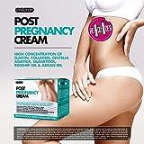 Zoom IMG-2 ardaraz la crema antismagliature gravidanza