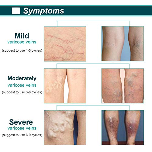 Varicose veins cream,Varicose cream,Varicose vein treatment cream,Relieves phlebitis & Angiitis Inflammation, Blood Veins Vasculitis, Improve Blood Circulation, for Legs Varicose care