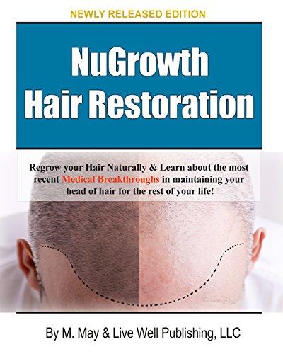 NuGrowth Hair Restoration: Regrow your hair Naturally (English Edition)