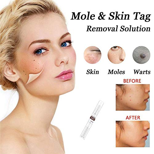 X1n design Skin Tag Remover,Wart Remover,Eyelid Skin Tag Remover for All Kind of Skin, Best Skin Tag Remover