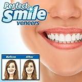SHOP-STORY - Dent de Remplacement Réutilisable et Amovible, Pose Instantanée de Dents Artificielles Instant Perfect Smile Kit Prothèse Dentaire Supérieure