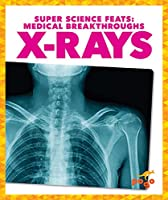 X-rays (Super Science Feats: Medical Breakthroughs)