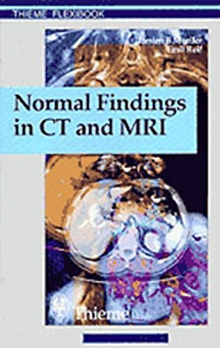 Normal Findings in CT and MRI, A1, print: . Zus.-Arb.: Torsten B. M????ller, Emil R. Reif 210 Illustrations by Torsten Bert Moeller (2000-01-30)