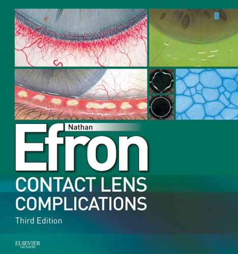 Contact Lens Complications E-Book: Expert Consult - Online and Print (English Edition)
