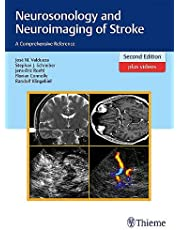 Neurosonology and Neuroimaging of Stroke: A Comprehensive Reference