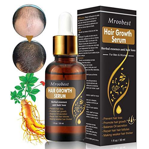 Hair Growth Serum, Hair Treatment Serum Oil, Hair Serum, Hair Growth Treatment, Stops Hair Loss, Thinning, Balding, Promotes Thicker, Fuller and Faster Growing Hair (30ML)