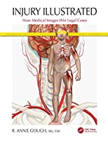 Injury Illustrated: How Medical Images Win Legal Cases Front Cover