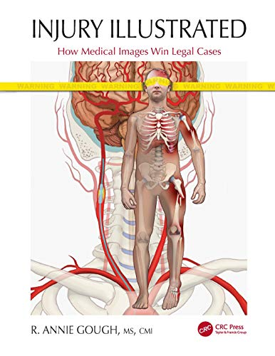 Compare Textbook Prices for Injury Illustrated: How Medical Images Win Legal Cases 1 Edition ISBN 9780367524173 by Gough, R. Annie
