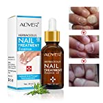 Beauty Shopping Nail Treatment Essence Oil, Natural Nail Treatment, Effective Nail Repair cream,