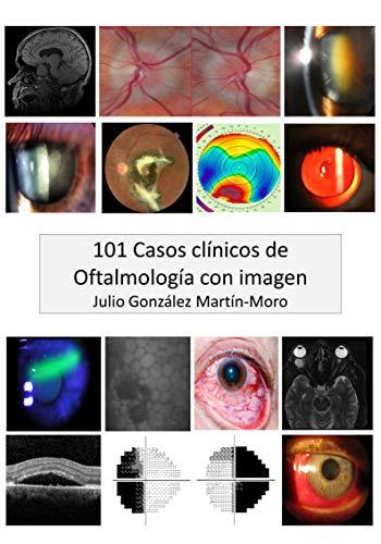 101 Casos clínicos de Oftalmología con imagen