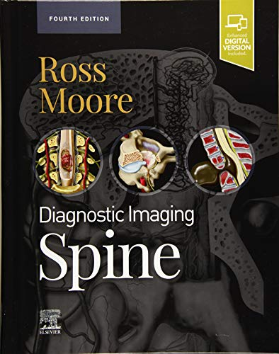 Compare Textbook Prices for Diagnostic Imaging: Spine 4 Edition ISBN 9780323793995 by Ross MD, Jeffrey S.,Moore MD, Kevin R.
