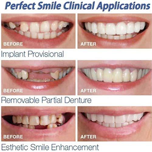 GBBG 2 Piezas Snap on Smile Dientes Carillas Blanqueamiento Dentadura Cosmética Instantánea Smile Dientes Fake Tooth Cover Herramientas De Higiene Bucal (Superior + Inferior)