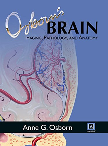 Osborn's Brain: Imaging, Pathology, and Anatomyの詳細を見る