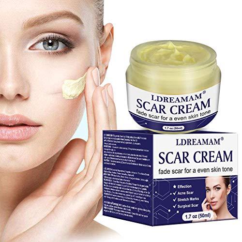 Narbensalbe,Narbencreme,Dehnungsstreifen Creme, Narbencreme Gesicht,Narbe gel,Scar Cream, Akne Creme, Akne-Flecken,Behandeln Sie neue und alte Narben 50ml