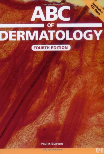 ABC of Dermatology: with CD–ROM (ABC Series)