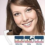 Zoom IMG-2 izhuoke rimozione tartaro denti 2