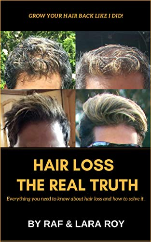 Hair Loss - The Real Truth: Everything you need to know about hair loss and how to solve it. Join me on my journey. (English Edition)